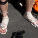 Foot care Transvulcania